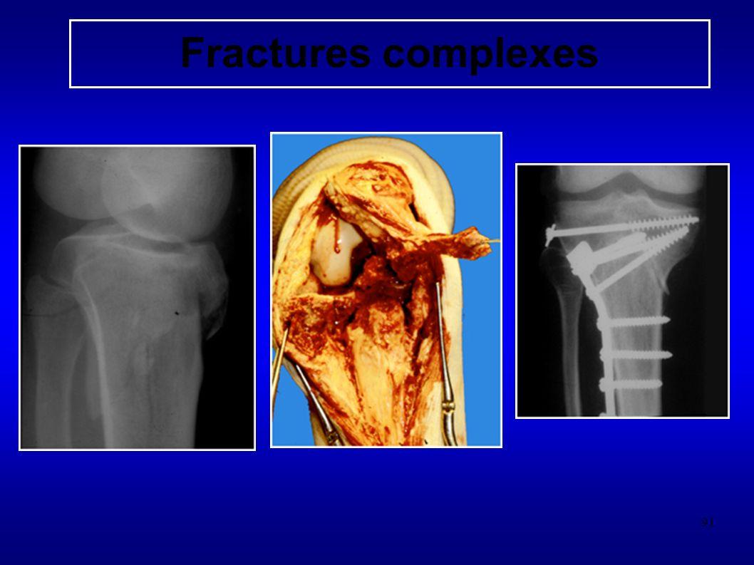 91 Fractures complexes