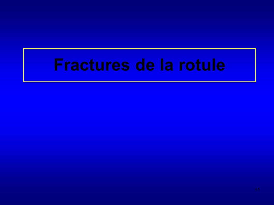 95 Fractures de la rotule