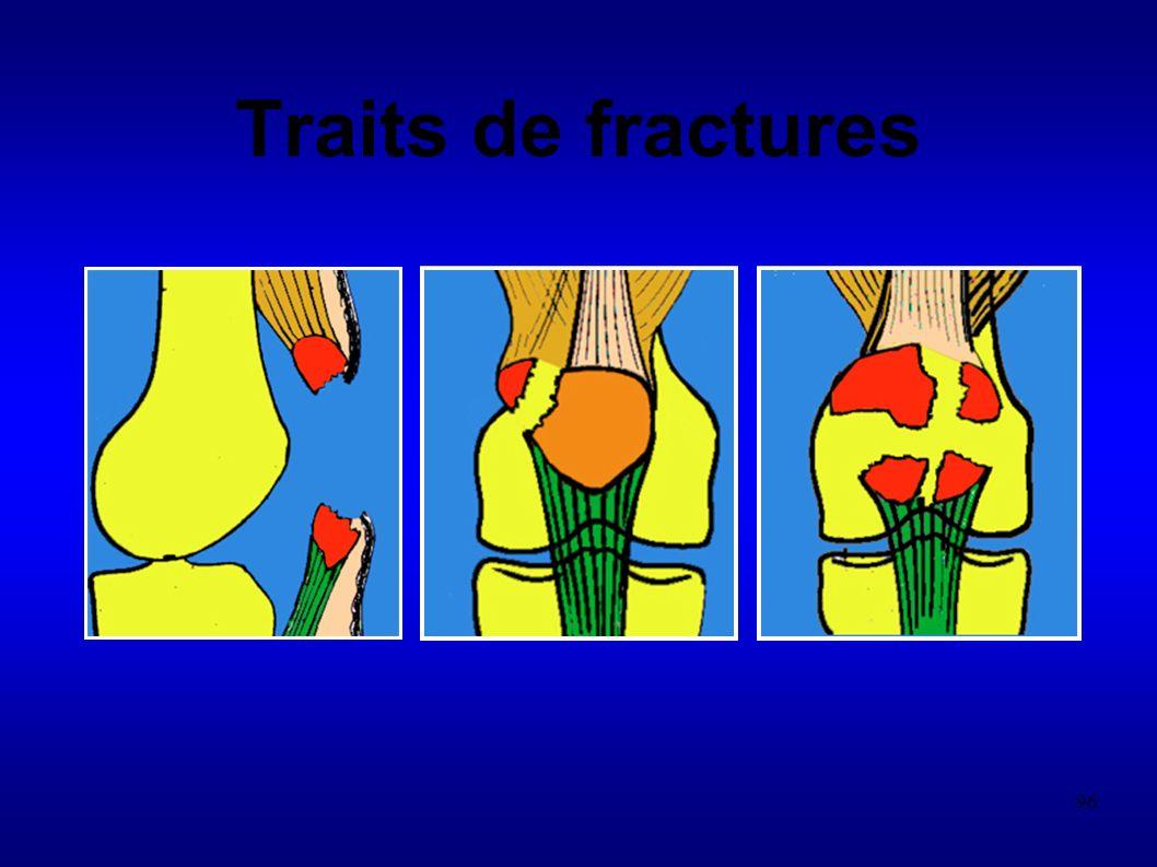 96 Traits de fractures