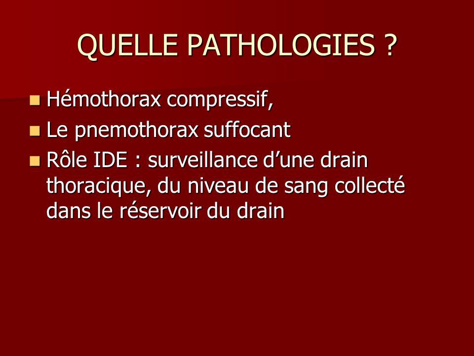 QUELLE PATHOLOGIES ? Hémothorax compressif, Hémothorax compressif, Le pnemothorax suffocant Le pnemothorax suffocant Rôle IDE : surveillance dune drai