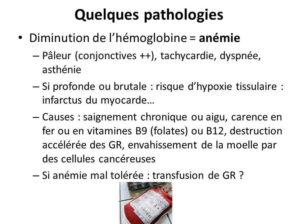 Quelques pathologies Diminution de lhémoglobine = anémie – Pâleur (conjonctives ++), tachycardie, dyspnée, asthénie – Si profonde ou brutale : risque