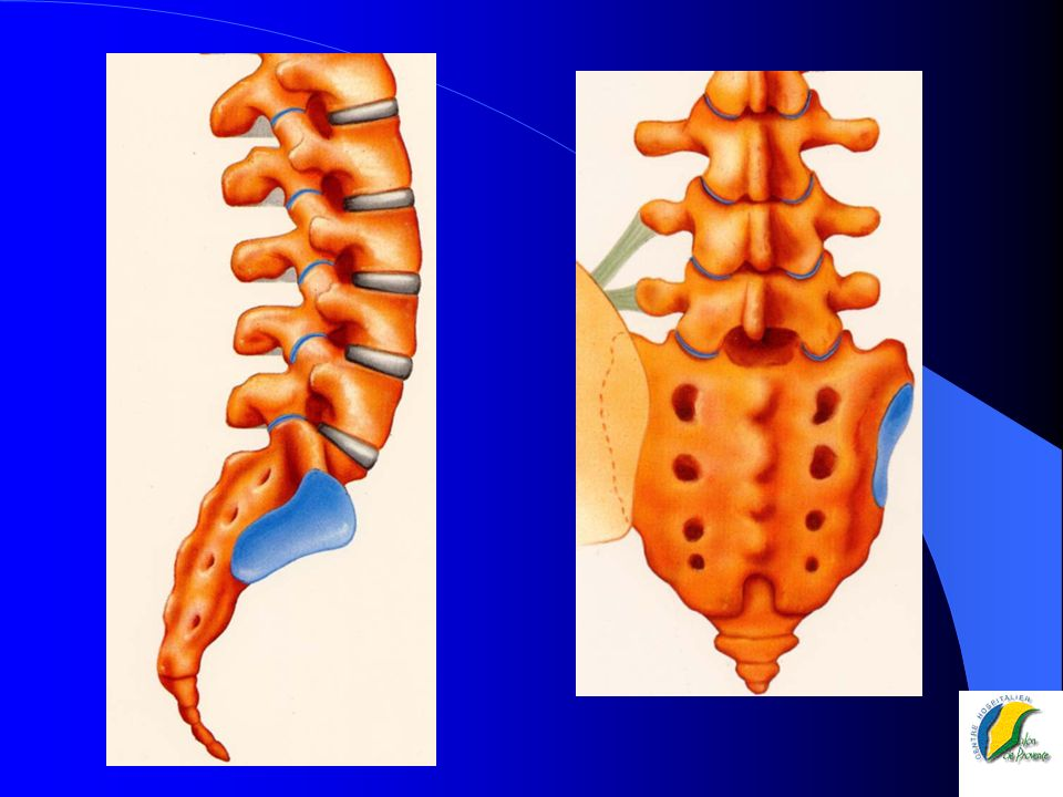 Le rachis lombaire Trépied – 1 colonne ant corps vertébraux – 2 colonnes post articulaires sup..