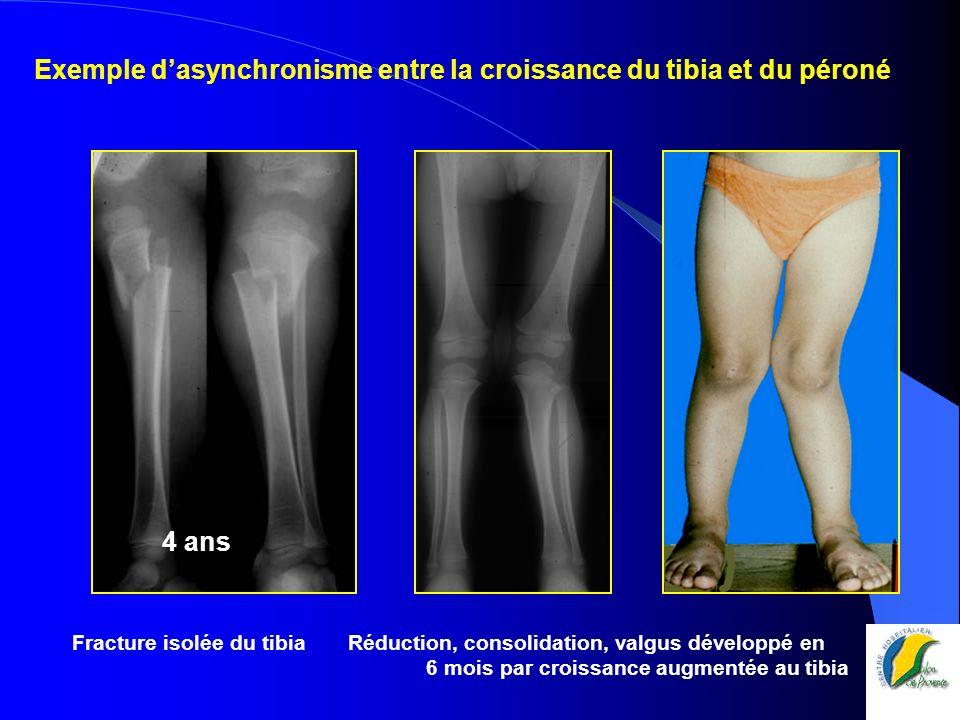 Fracture isolée du tibia Réduction, consolidation, valgus développé en 6 mois par croissance augmentée au tibia Exemple dasynchronisme entre la croiss