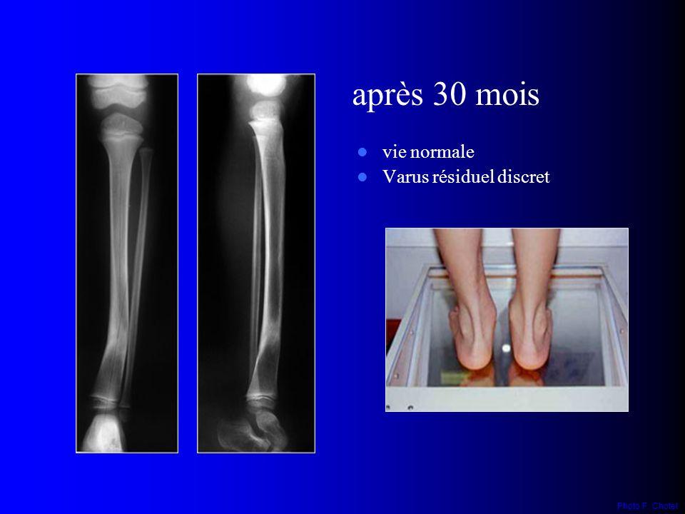 vie normale Varus résiduel discret après 30 mois Photo F. Chotel