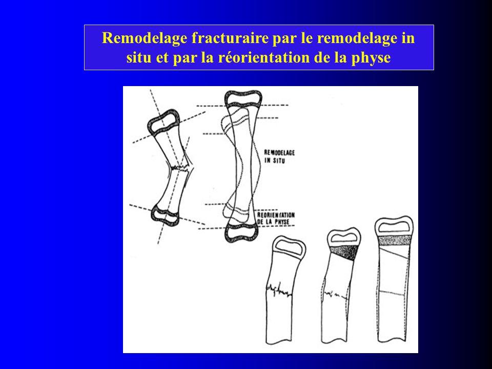Remodelage fracturaire par le remodelage in situ et par la réorientation de la physe Croissance asymétrique au niveau de la physe