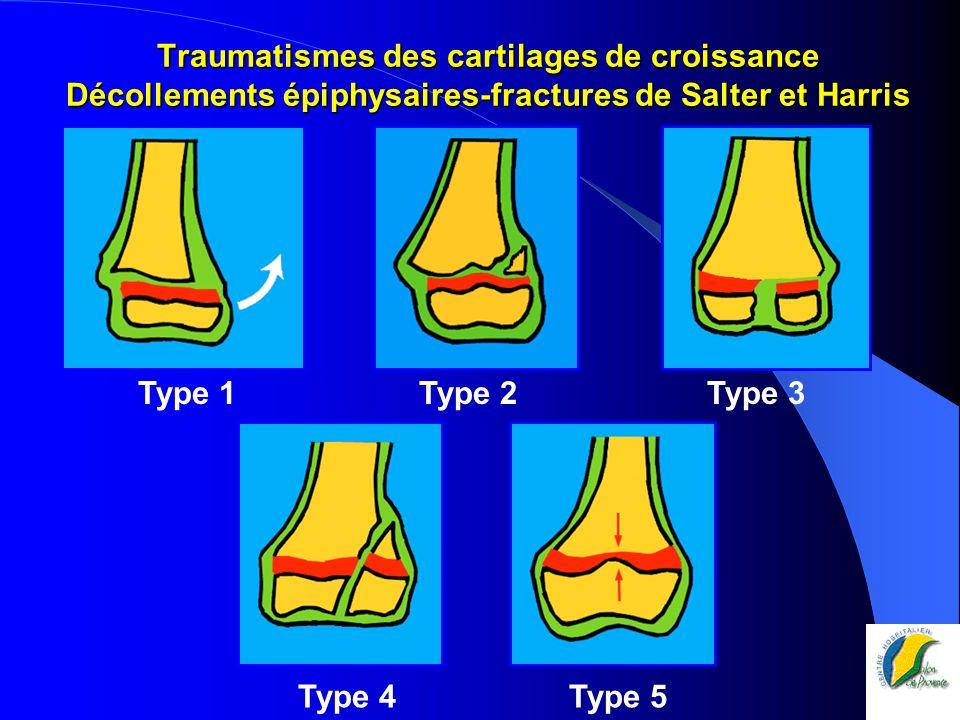 Traumatismes des cartilages de croissance Décollements épiphysaires-fractures de Salter et Harris Type 1 Type 2 Type 3 Type 4 Type 5