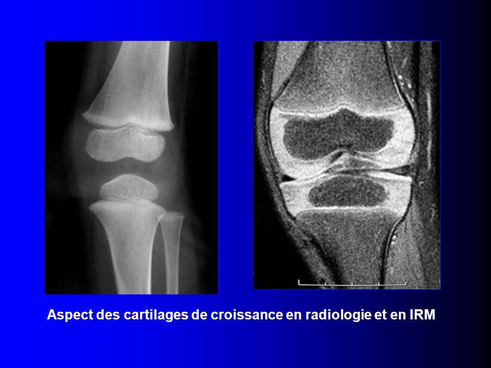 Aspect des cartilages de croissance en radiologie et en IRM