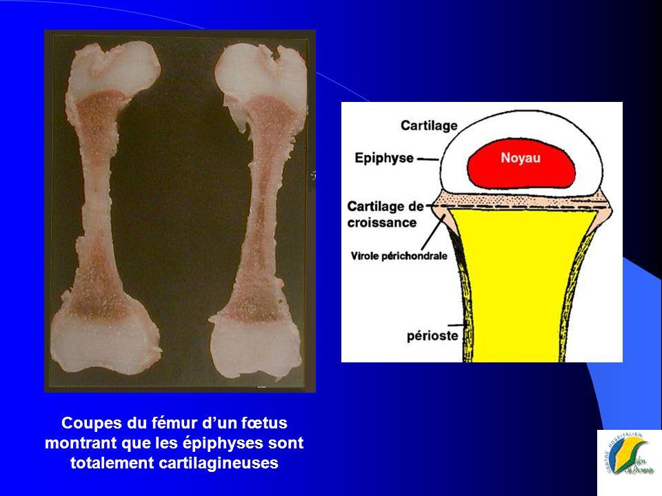 On peut freiner la croissance du côté interne par agrafage : correction progressive de la déformation en valgus Après 3 ostéotomies successives corrigeant le valgus, épiphysiodèse réalisée à 13 ans