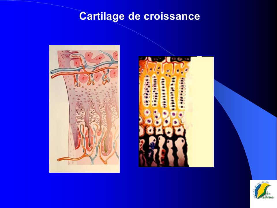 Cartilages de conjugaison, plaques de croissance
