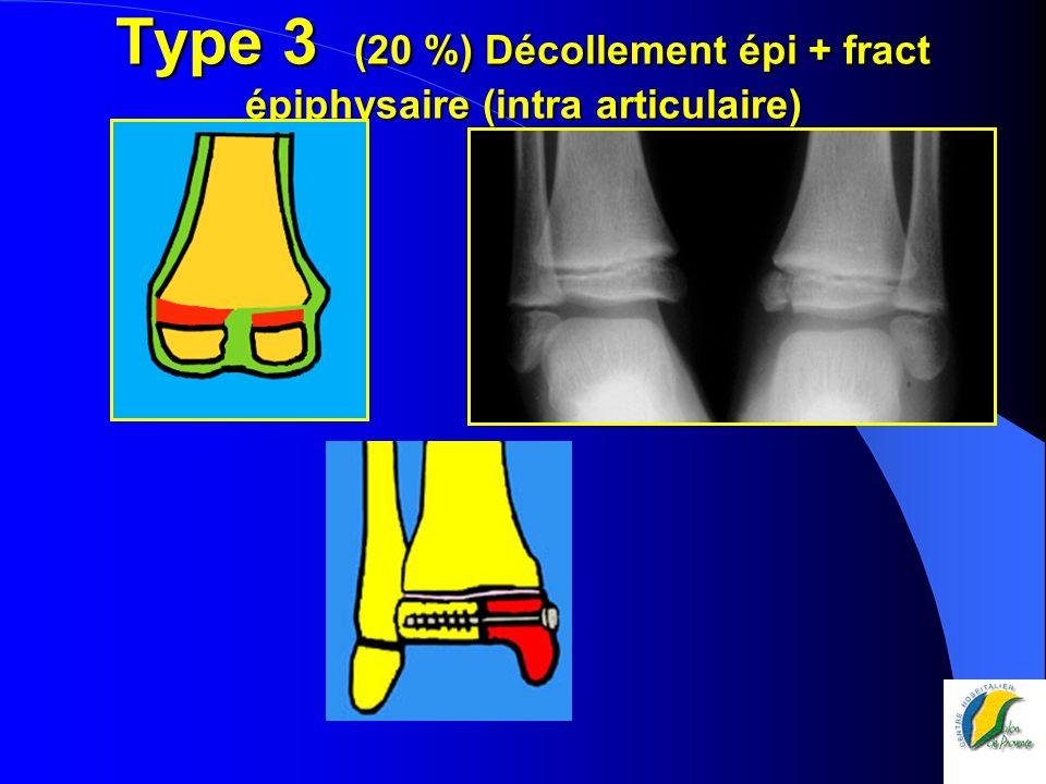 Type 3 (20 %) Décollement épi + fract épiphysaire (intra articulaire)