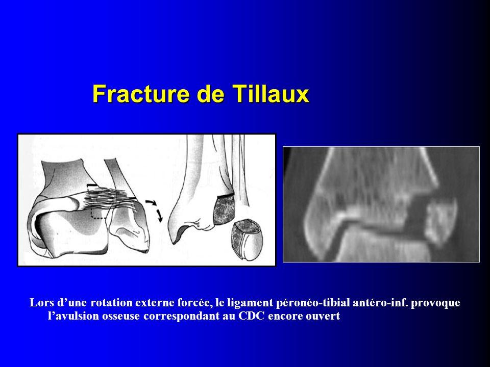 Lors dune rotation externe forcée, le ligament péronéo-tibial antéro-inf. provoque lavulsion osseuse correspondant au CDC encore ouvert Fracture de Ti