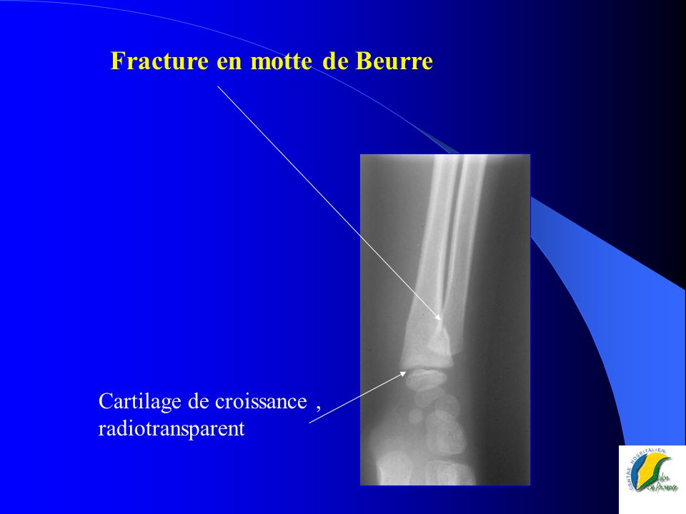 Fracture en motte de Beurre Cartilage de croissance, radiotransparent