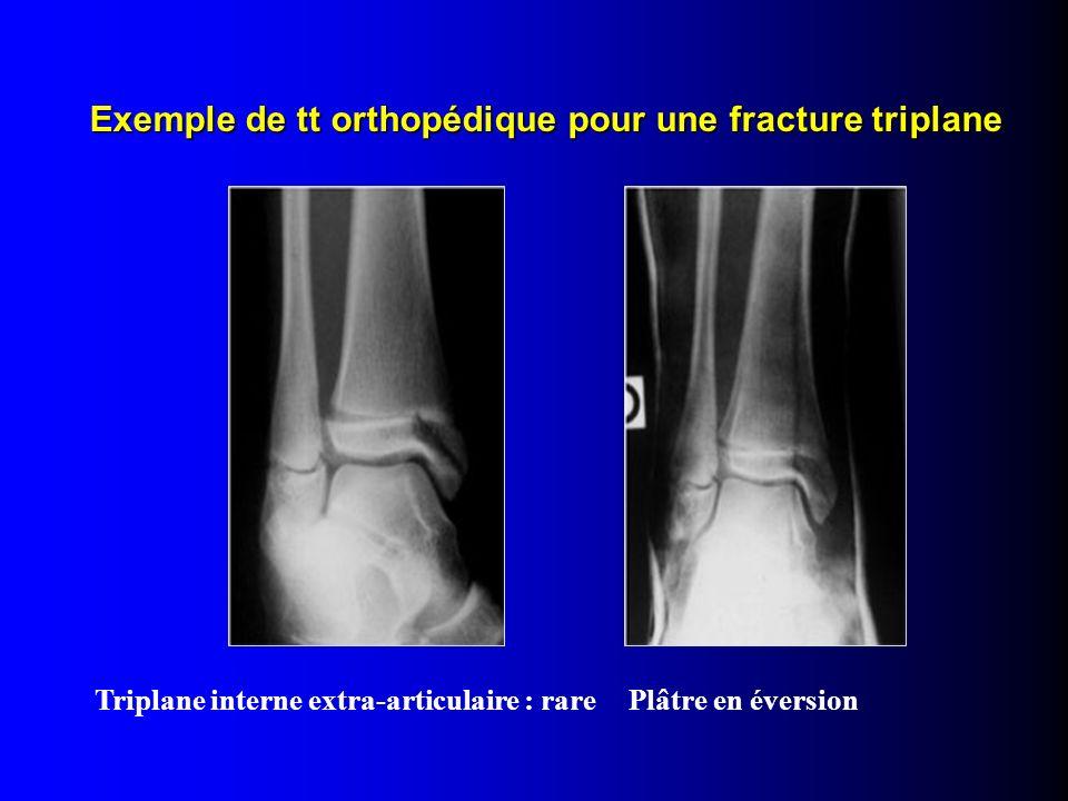 Triplane interne extra-articulaire : rarePlâtre en éversion Exemple de tt orthopédique pour une fracture triplane Exemple de tt orthopédique pour une