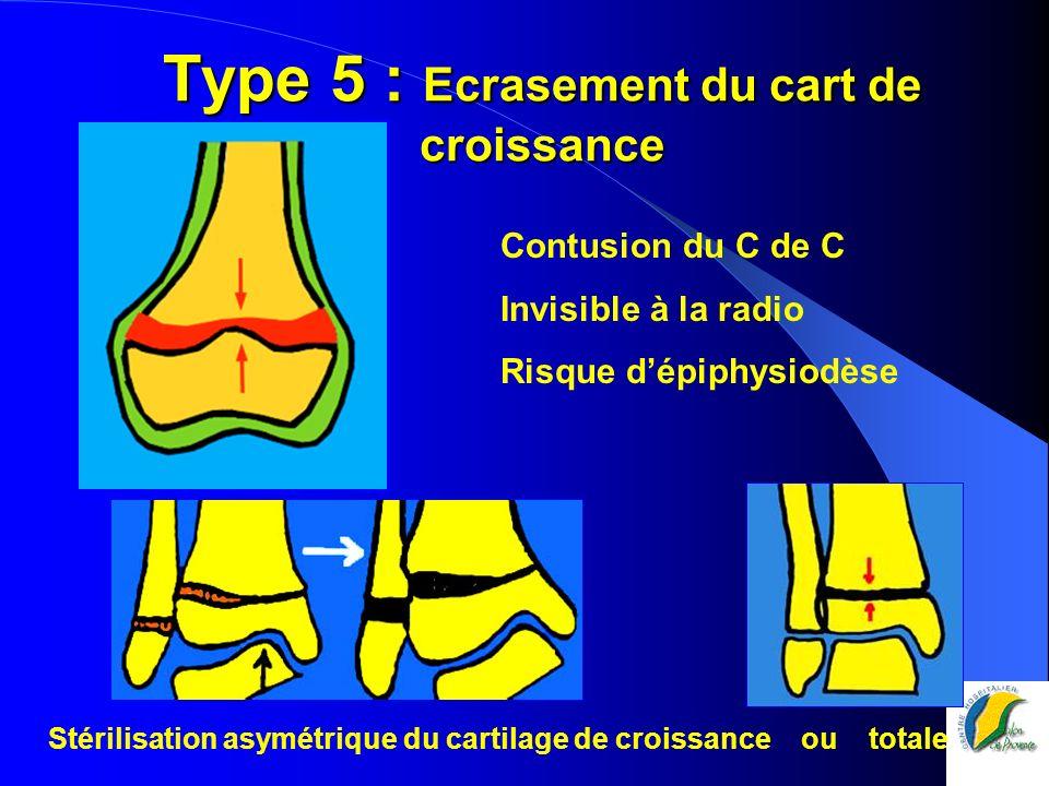 Type 5 : Ecrasement du cart de croissance Contusion du C de C Invisible à la radio Risque dépiphysiodèse Stérilisation asymétrique du cartilage de cro