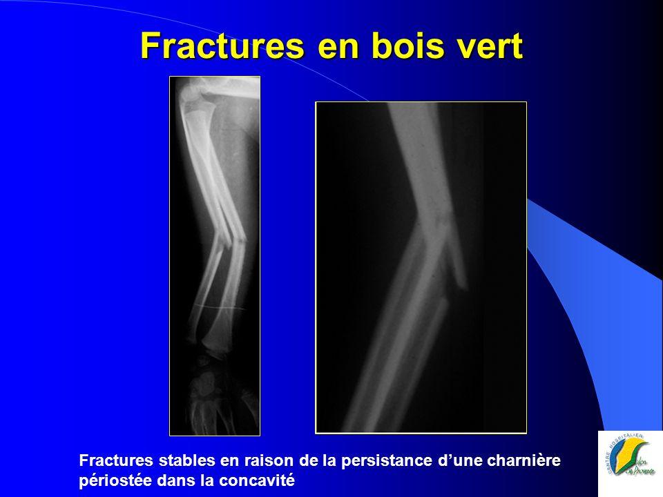 Fractures en bois vert Fractures stables en raison de la persistance dune charnière périostée dans la concavité
