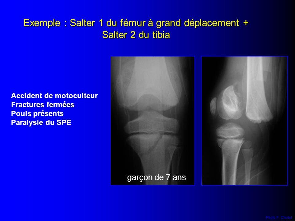 Exemple : Salter 1 du fémur à grand déplacement + Salter 2 du tibia Accident de motoculteur Fractures fermées Pouls présents Paralysie du SPE garçon d