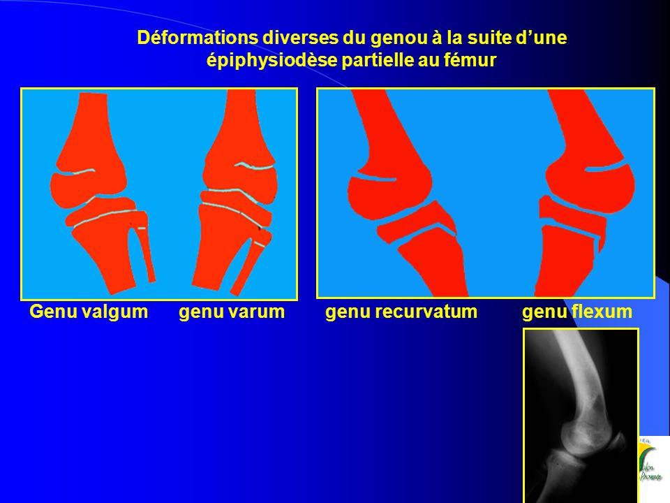 Déformations diverses du genou à la suite dune épiphysiodèse partielle au fémur Genu valgum genu varum genu recurvatum genu flexum