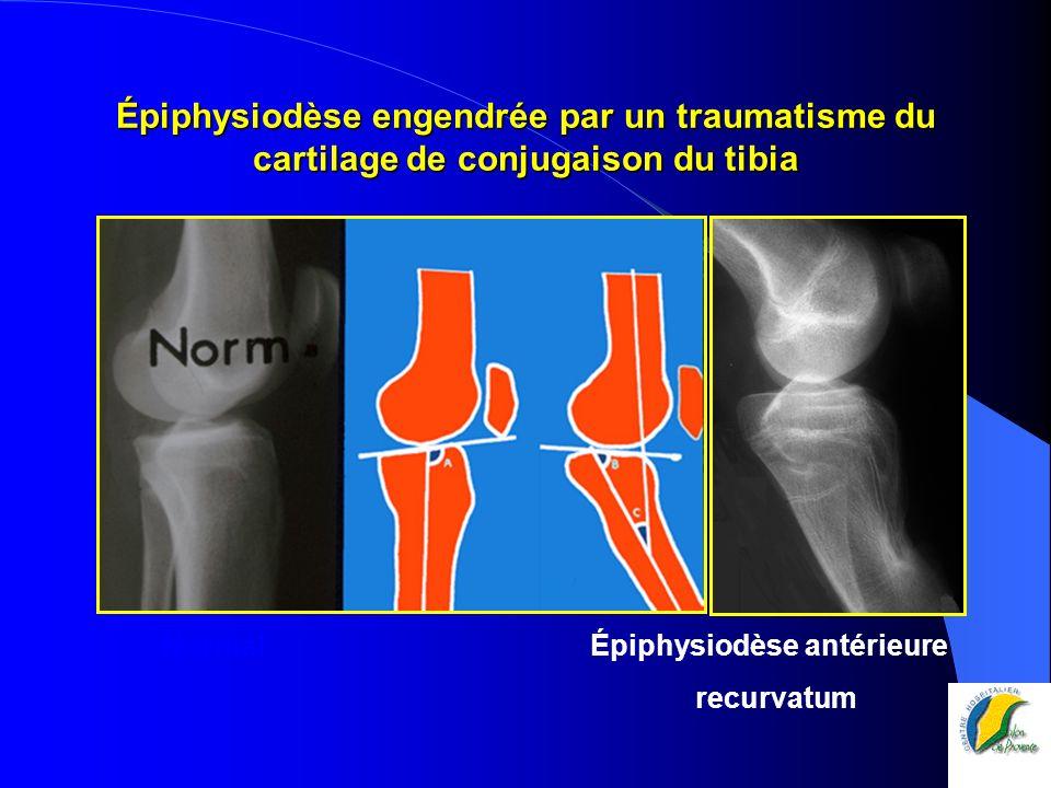 Épiphysiodèse engendrée par un traumatisme du cartilage de conjugaison du tibia Normal Épiphysiodèse antérieure recurvatum