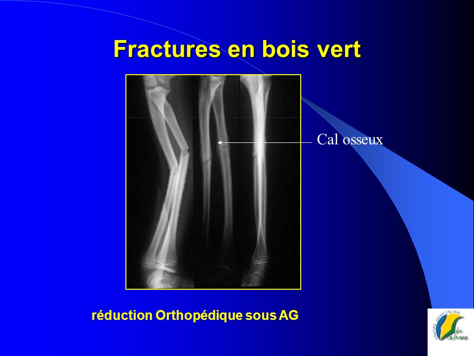 Réduction par manipulations Mais instabilité => brochage percutané en croix Ostéosynthèse par broches Photo F.