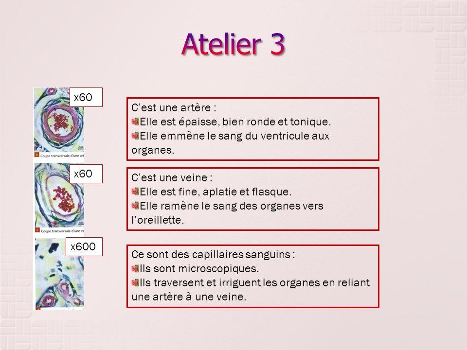 x60 x600 Cest une artère : Elle est épaisse, bien ronde et tonique. Elle emmène le sang du ventricule aux organes. Cest une veine : Elle est fine, apl