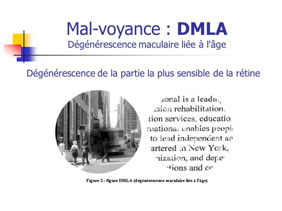Mal-voyance : DMLA Dégénérescence maculaire liée à l'âge Dégénérescence de la partie la plus sensible de la rétine