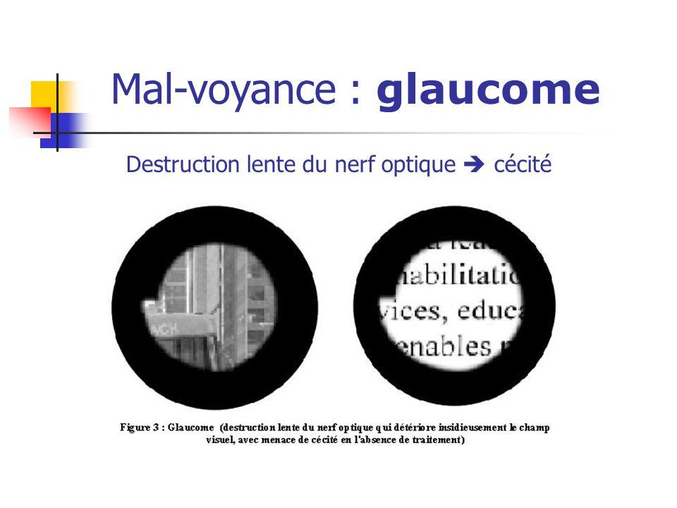 Mal-voyance : glaucome Destruction lente du nerf optique cécité