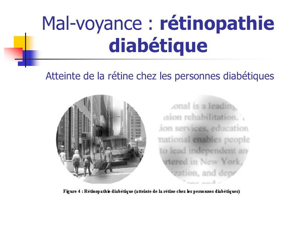 Mal-voyance : rétinopathie diabétique Atteinte de la rétine chez les personnes diabétiques