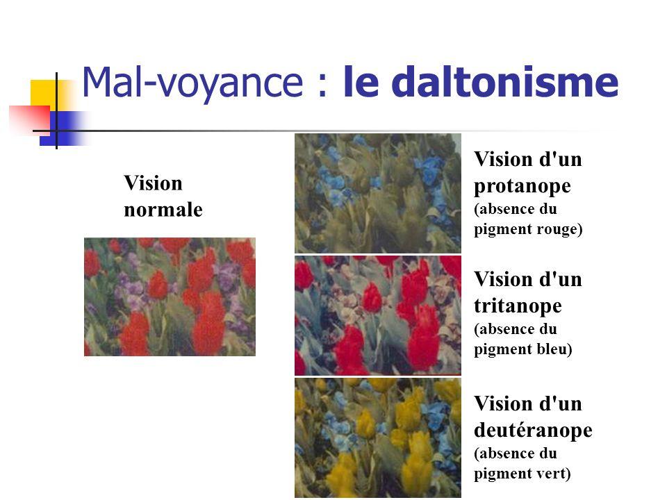 Vision d'un protanope (absence du pigment rouge) Vision d'un tritanope (absence du pigment bleu) Vision d'un deutéranope (absence du pigment vert) Vis