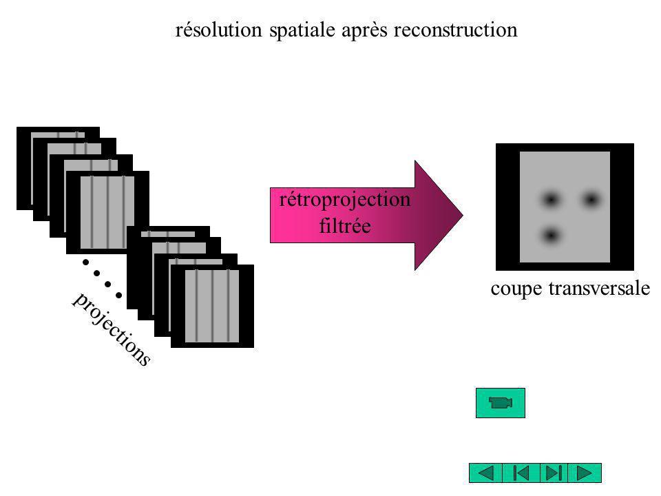 projections rétroprojection filtrée coupe transversale résolution spatiale après reconstruction