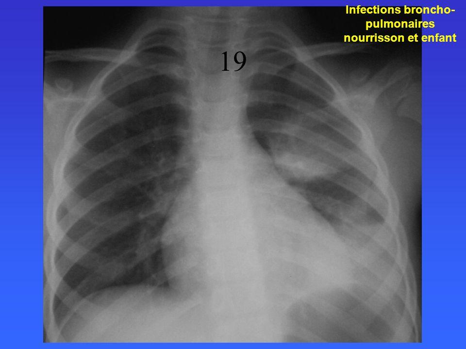 Infections broncho- pulmonaires nourrisson et enfant 19
