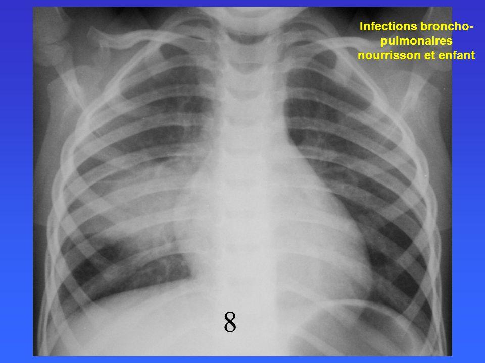 Recommandations Afssaps Octobre 2005 Infections broncho- pulmonaires nourrisson et enfant