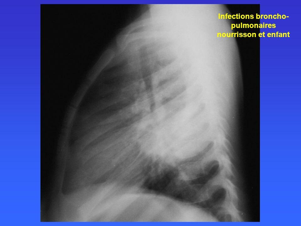 Infections broncho- pulmonaires nourrisson et enfant 20