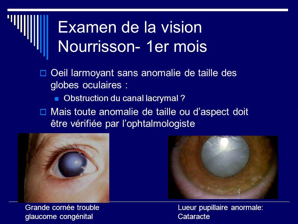Examen de la vision Nourrisson- 1er mois Oeil larmoyant sans anomalie de taille des globes oculaires : Obstruction du canal lacrymal ? Mais toute anom