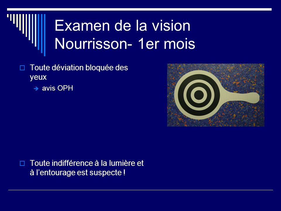 Examen de la vision Nourrisson- 1er mois Toute déviation bloquée des yeux avis OPH Toute indifférence à la lumière et à lentourage est suspecte !