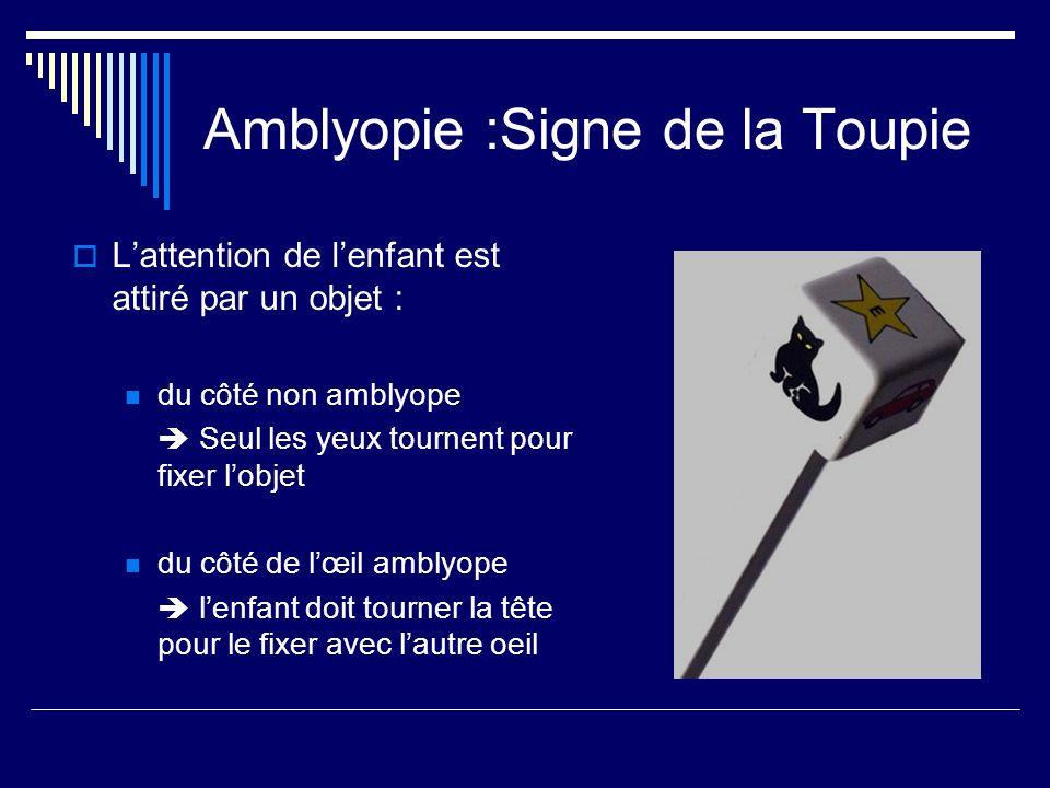 Amblyopie :Signe de la Toupie Lattention de lenfant est attiré par un objet : du côté non amblyope Seul les yeux tournent pour fixer lobjet du côté de