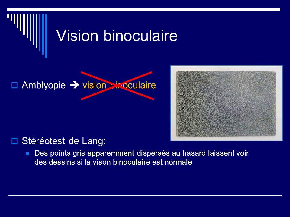 Vision binoculaire Amblyopie vision binoculaire Stéréotest de Lang: Des points gris apparemment dispersés au hasard laissent voir des dessins si la vi
