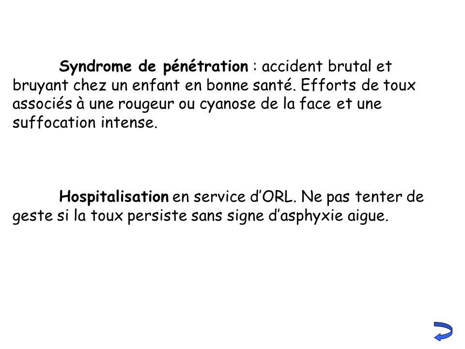 Syndrome de pénétration : accident brutal et bruyant chez un enfant en bonne santé. Efforts de toux associés à une rougeur ou cyanose de la face et un