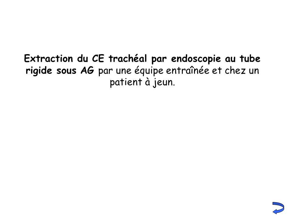 Extraction du CE trachéal par endoscopie au tube rigide sous AG par une équipe entraînée et chez un patient à jeun.