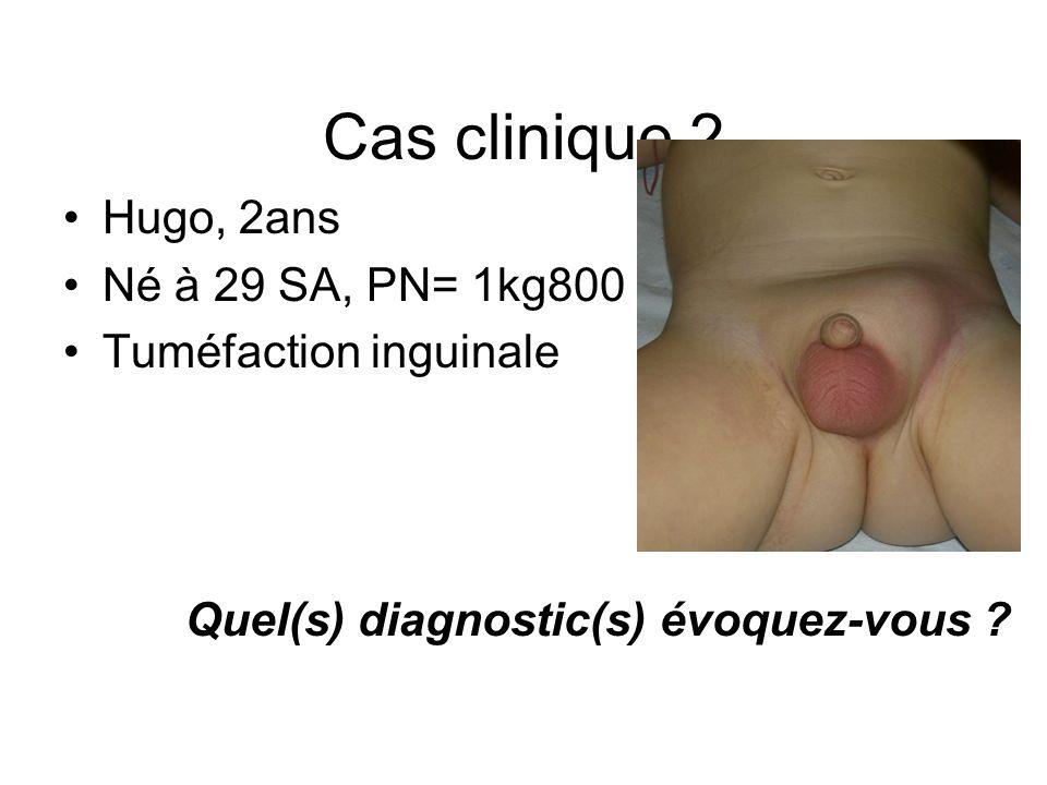 Cas clinique 2 Hugo, 2ans Né à 29 SA, PN= 1kg800 Tuméfaction inguinale Quel(s) diagnostic(s) évoquez-vous ?