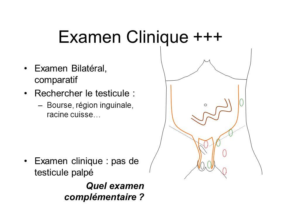 Examen Clinique +++ Examen Bilatéral, comparatif Rechercher le testicule : –Bourse, région inguinale, racine cuisse… Examen clinique : pas de testicul