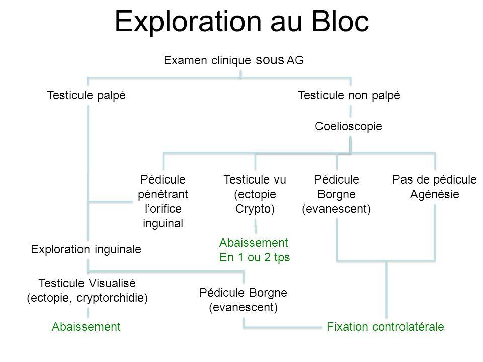 Exploration au Bloc Examen clinique sous AG Testicule palpéTesticule non palpé Exploration inguinale Abaissement Coelioscopie Fixation controlatérale