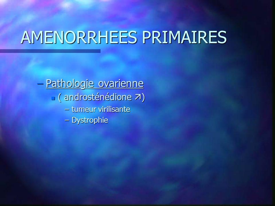 AMENORRHEES PRIMAIRES –Pathologie ovarienne n ( androsténédione ) –tumeur virilisante –Dystrophie