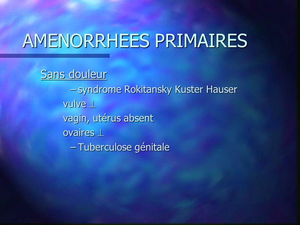 AMENORRHEES PRIMAIRES 2/ courbe de température monophasique –Testicule féminisant n ablation des récepteurs aux androgènes n génétique 46 XY n morpho féminin, sans poil, vulve infantile, vagin court, pas d utérus ni d ovaire n présence de testicules région inguinale n caryotype 46 XY, testostérone n caryotype 46 XY, testostérone