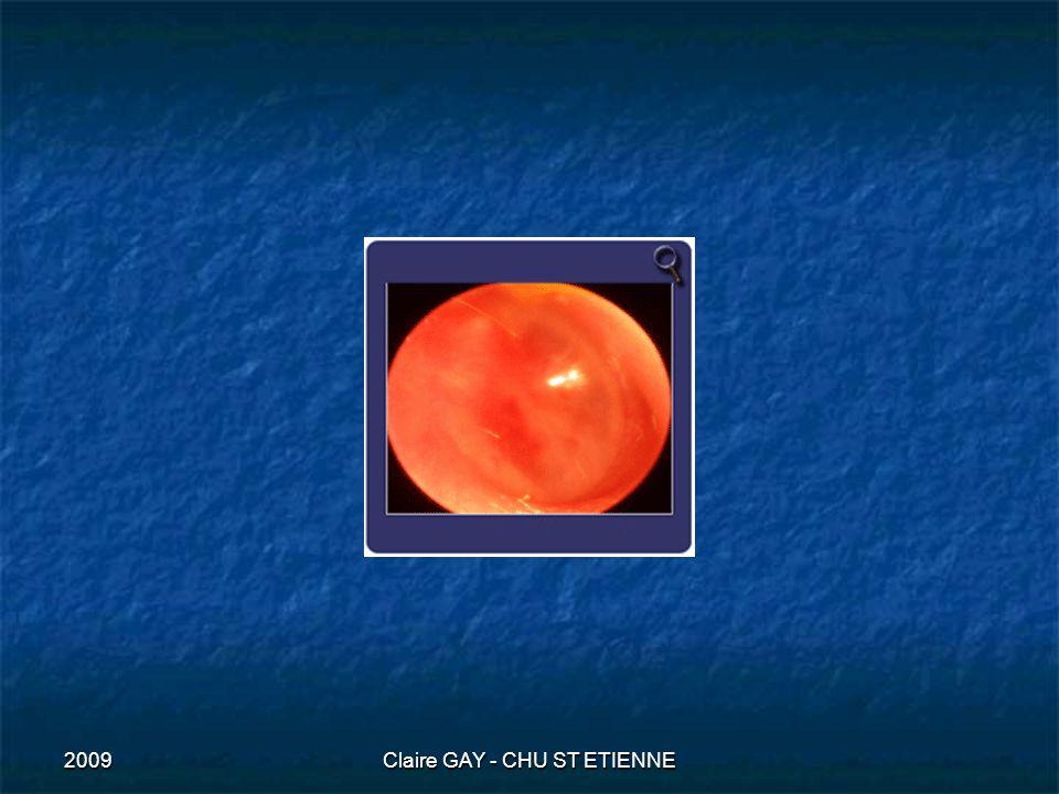 2009Claire GAY - CHU ST ETIENNE Lola 9 mois Quelle est la posologie du paracétamol et ses présentations chez lenfant .
