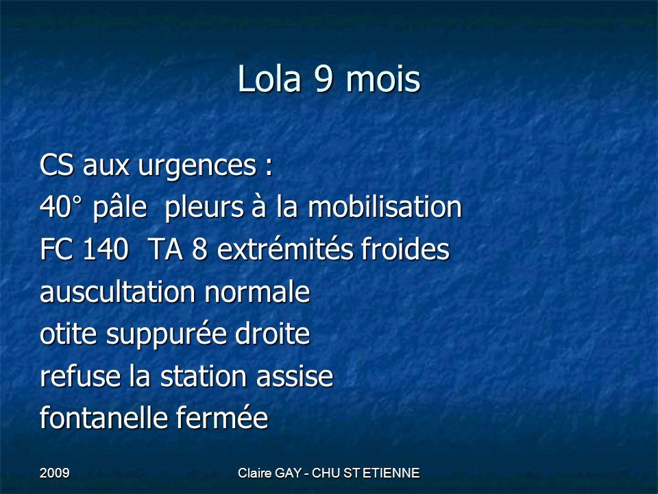 2009Claire GAY - CHU ST ETIENNE Lola 9 mois CS aux urgences : 40° pâle pleurs à la mobilisation FC 140 TA 8 extrémités froides auscultation normale ot