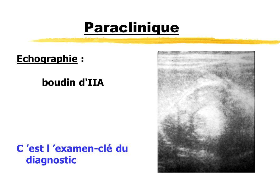 Paraclinique Echographie : boudin d'IIA C est l examen-clé du diagnostic