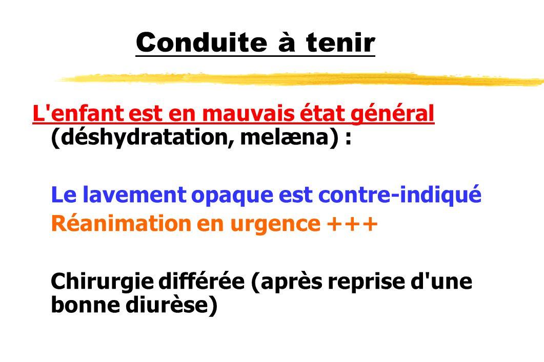 Conduite à tenir L'enfant est en mauvais état général (déshydratation, melæna) : Le lavement opaque est contre-indiqué Réanimation en urgence +++ Chir