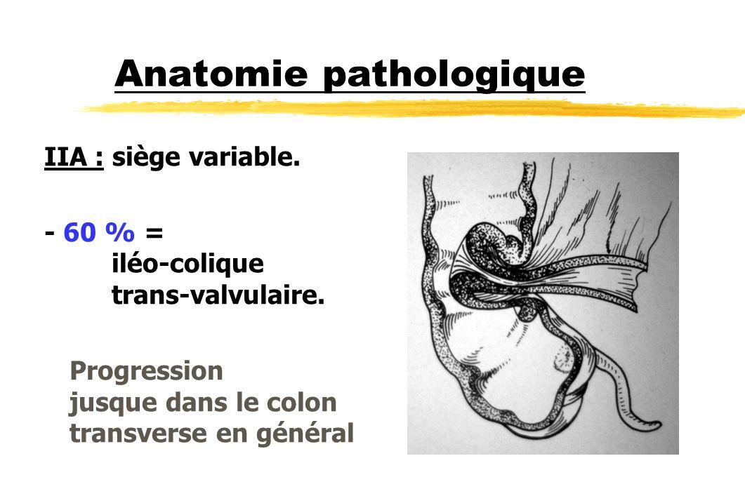 Anatomie pathologique IIA : siège variable. - 60 % = iléo-colique trans-valvulaire. Progression jusque dans le colon transverse en général