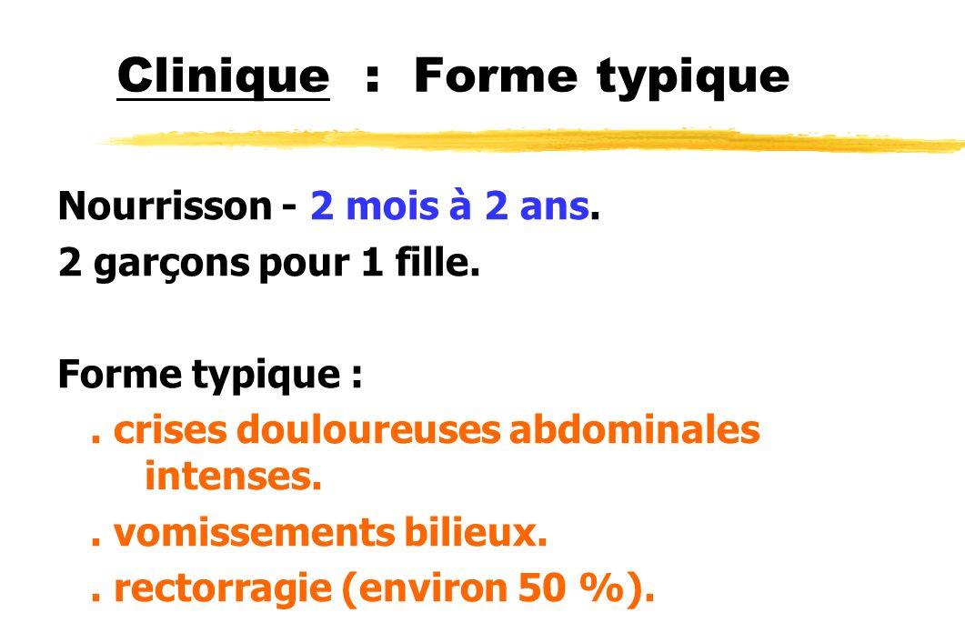 Clinique : Forme typique Examen :.FID vide.. masse sous-costale droite douloureuse = boudin..