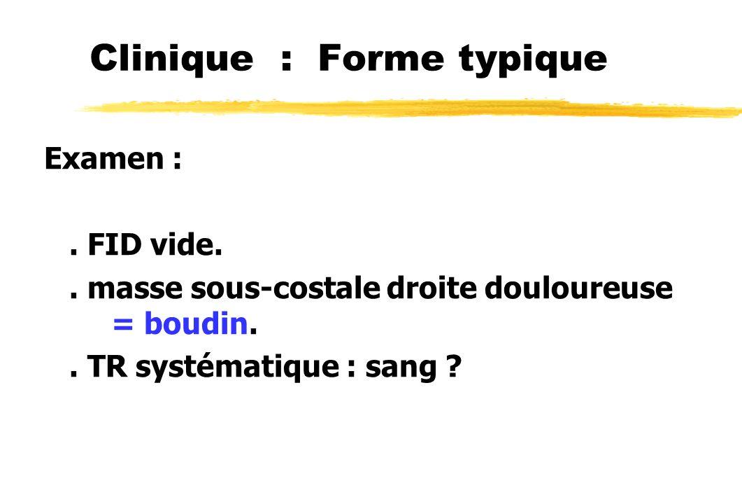 Clinique : Forme typique Examen :. FID vide.. masse sous-costale droite douloureuse = boudin.. TR systématique : sang ?
